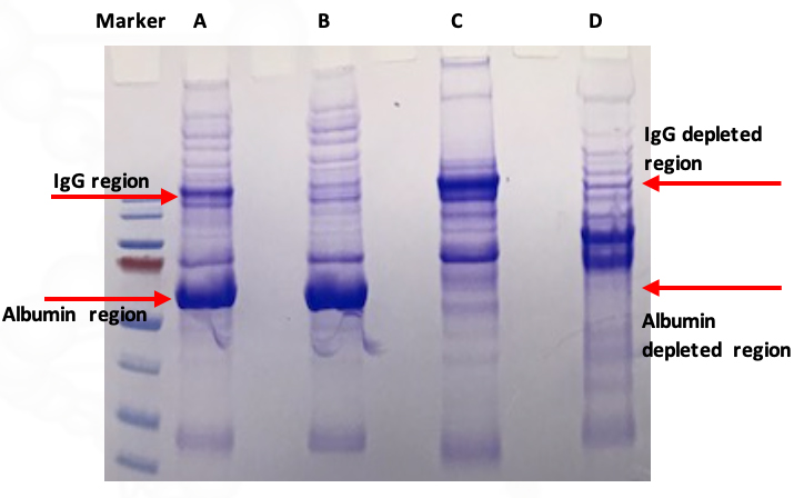SDS-PAGE: Comparison of three methods using Human Serum Sample