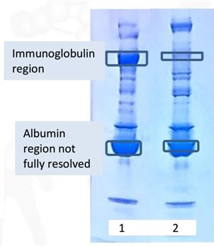 AlbuSorb™ combines with an optimized immobilized Protein A to create AlbuSorb™ PLUS