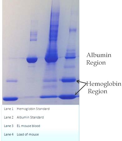 Albumin and Hemoglobin Regions